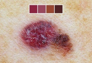 What Colors Can Melanoma Skin Cancer Be?