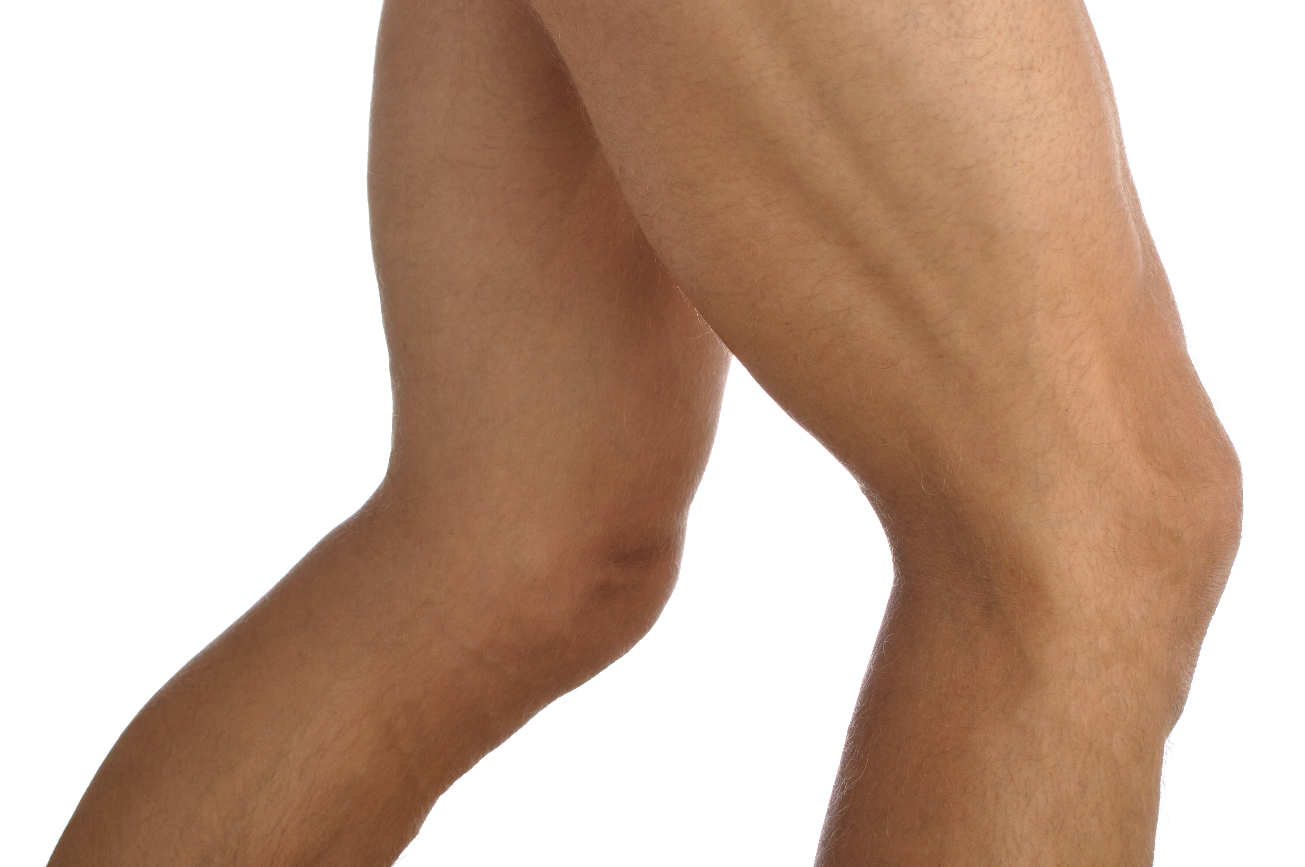 Dent in Thigh: One of the Most Feared Symptoms