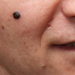 How Common Is Melanoma Black; Can a Normal Mole Be Black?