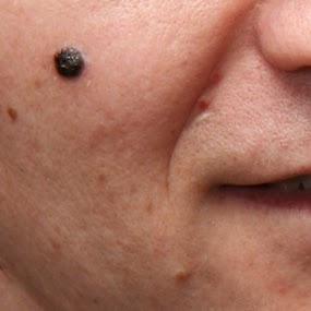 pictures of melanoma moles on face