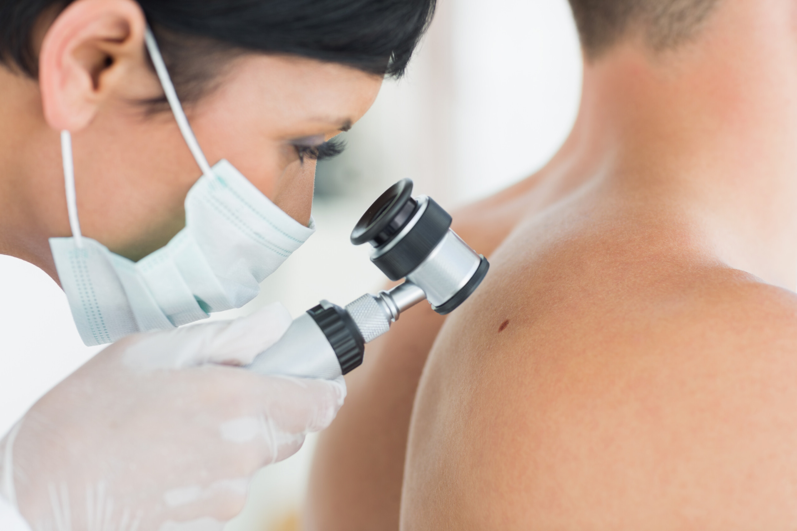 Should Young Adults Be Concerned About Melanoma Screening?