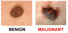 Two Ways Melanoma Can Become Deadly