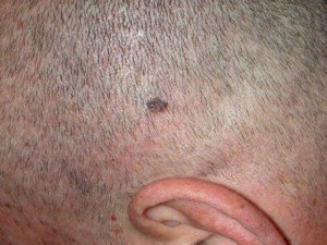 Why Does A Mole Biopsy Sometimes Miss Melanoma?