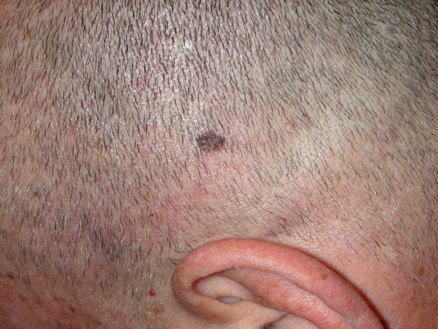 how to detect skin cancer on scalp