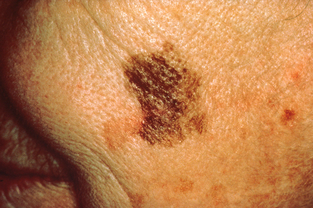 What's the Biggest that Melanoma In Situ Can Grow?