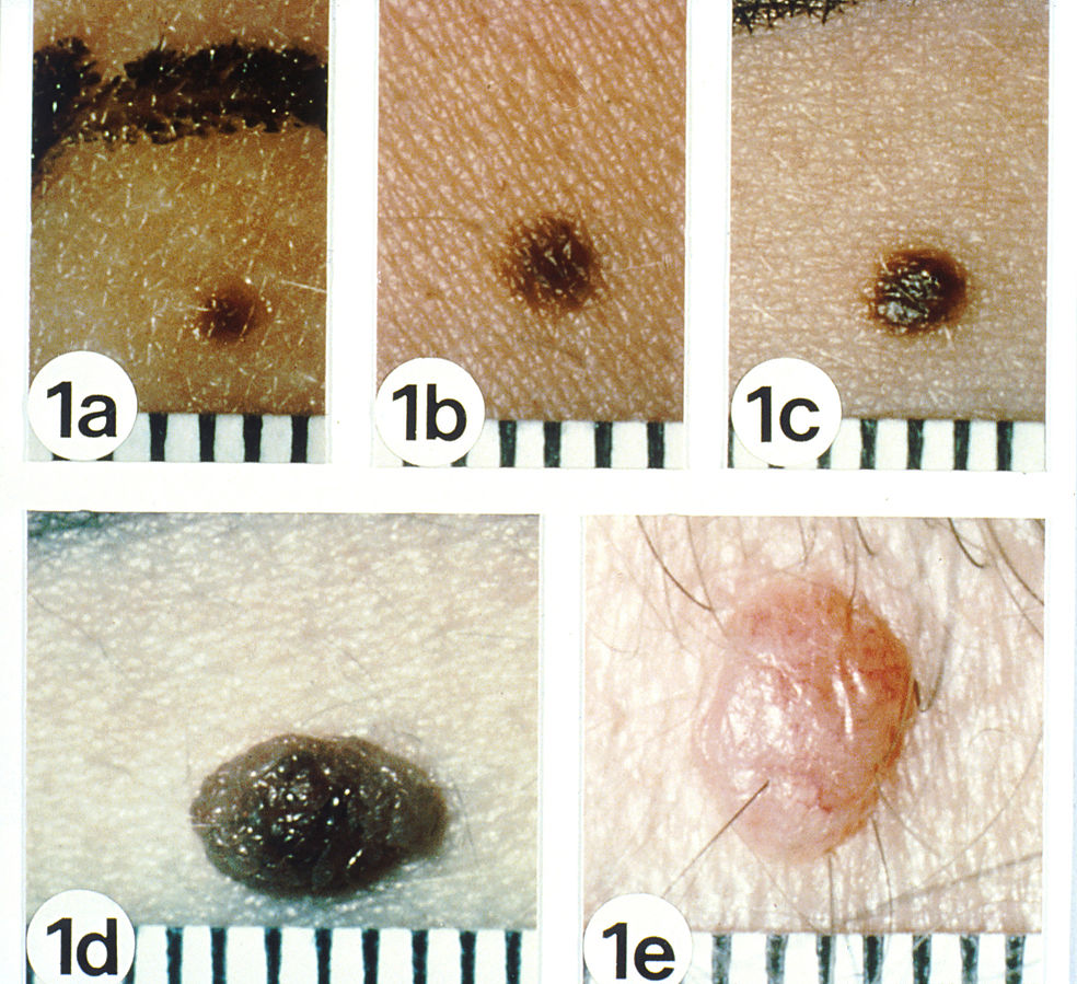 Are Flat Moles Safer than Raised or Equally Prone to Melanoma?
