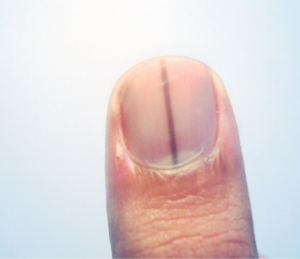 Normal Black Line Under Fingernail vs. Melanoma Streak