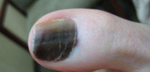 Normal Black Line Under Fingernail vs  Melanoma Streak