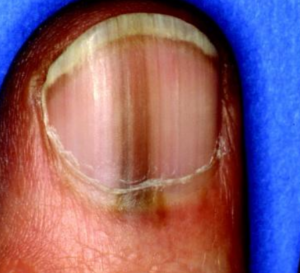 Normal Black Line Under Fingernail vs. Melanoma Streak » Scary Symptoms