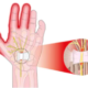 Carpal Tunnel vs. Pronator Syndrome: Symptom Comparison