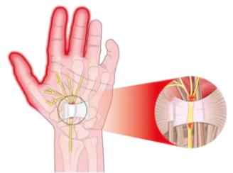 Carpal Tunnel vs. Pronator Syndrome: Symptom Comparison
