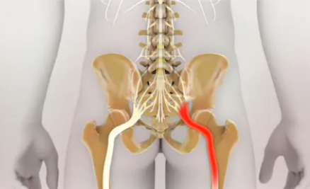 Core Muscles Are Secret to Preventing Sciatica from Developing