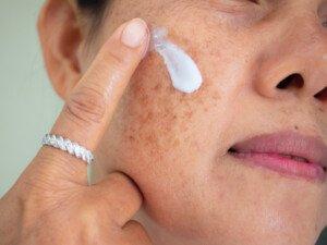 Sun Spots on Skin vs. Age Spots
