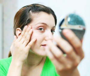Eyebrow Bald Spots: Causes & Solutions