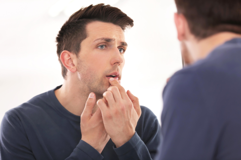 Dark Spot on Lip Can Be Melanoma