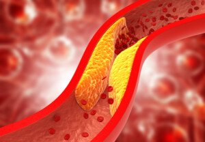 Can Two Supplements Reverse Plaque in Coronary Arteries?