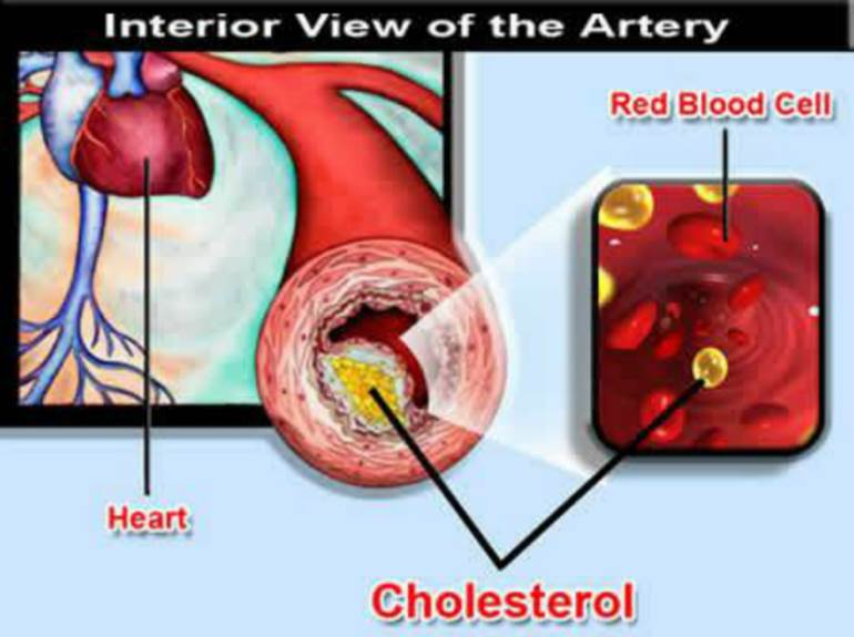 Does High Cholesterol Mean You Should Take Statin Drugs?
