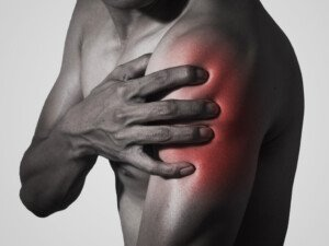 How to Relieve Muscle Cramps from Clavicle Fracture