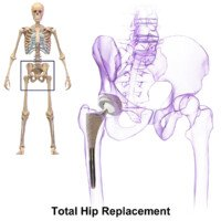 Regional vs. General Anesthesia for Hip Fracture Surgery
