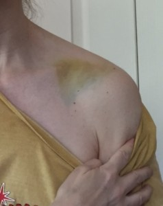 Time It Takes Clavicle Fracture Bruising to Disappear