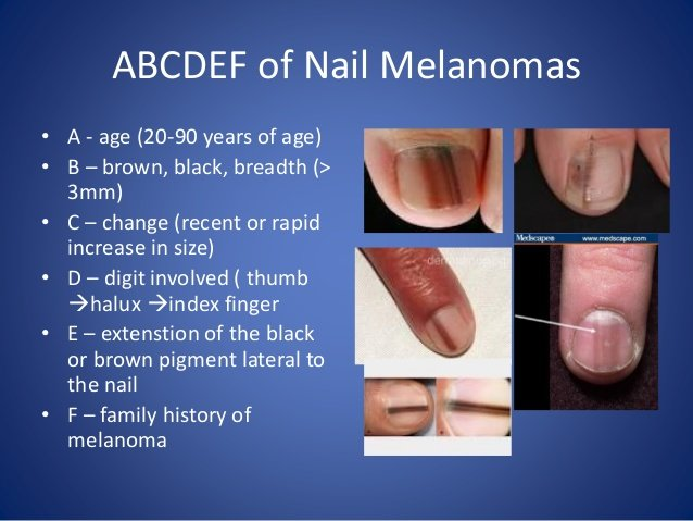 Big Toenail Has Vertical Light Brown Line: Melanoma? » Scary Symptoms