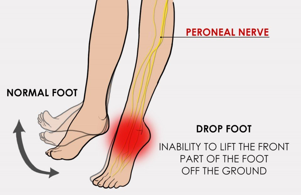 Would ALS or MS Foot Drop Make Driving Difficult?