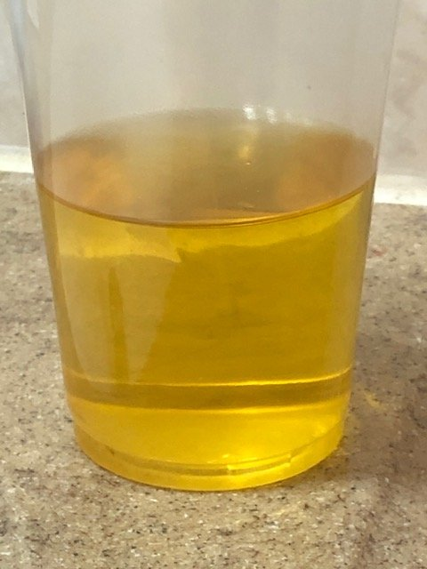 Is Hot Urine a Sign of Disease or Can this Be Normal?