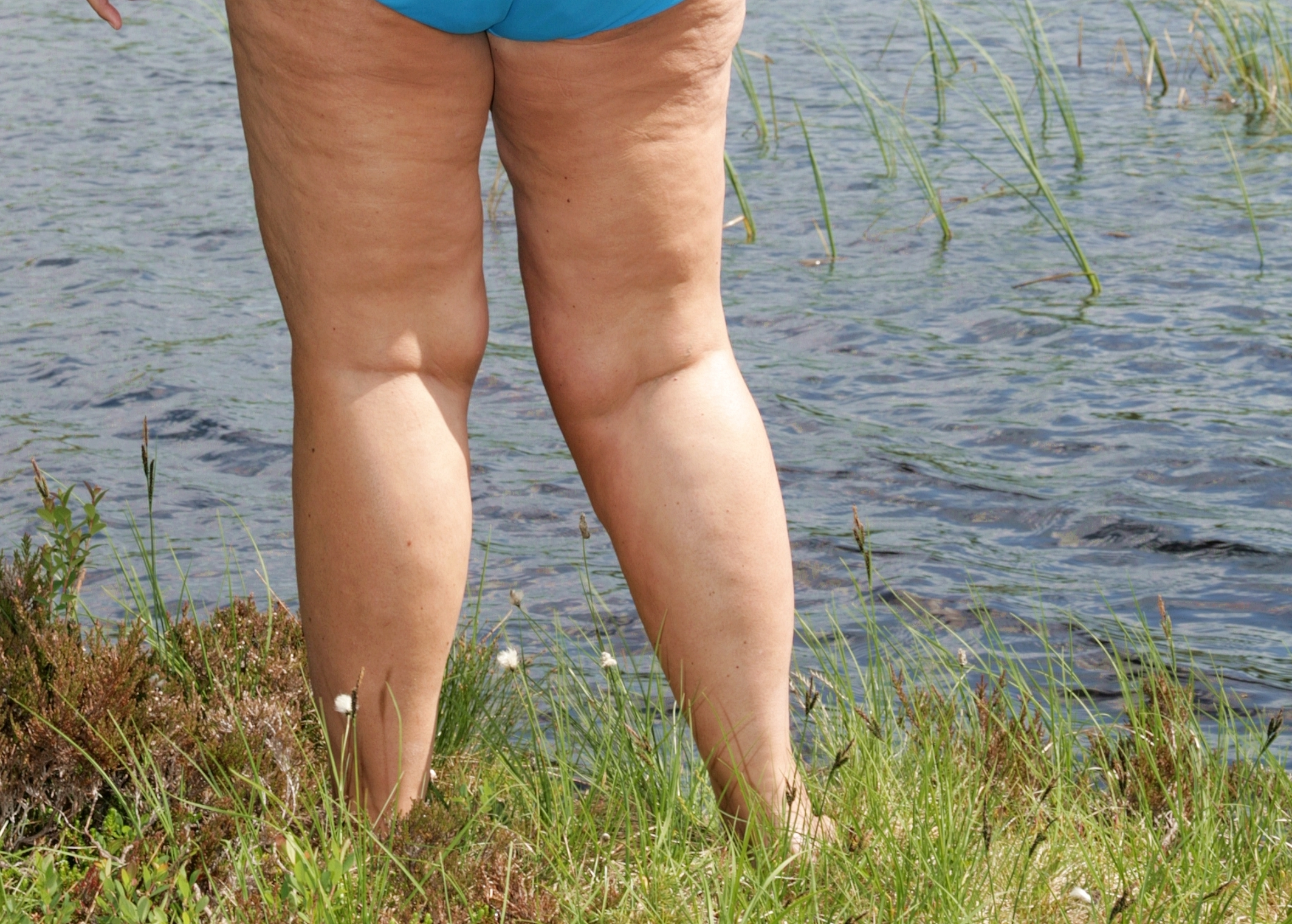 Hefty Thighs Not Healthy: How to Lose Thigh Fat