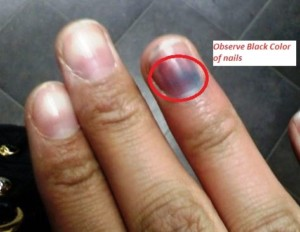 Is Nail Melanoma Always a Stripe or Can It Be a Smudge? » Scary Symptoms