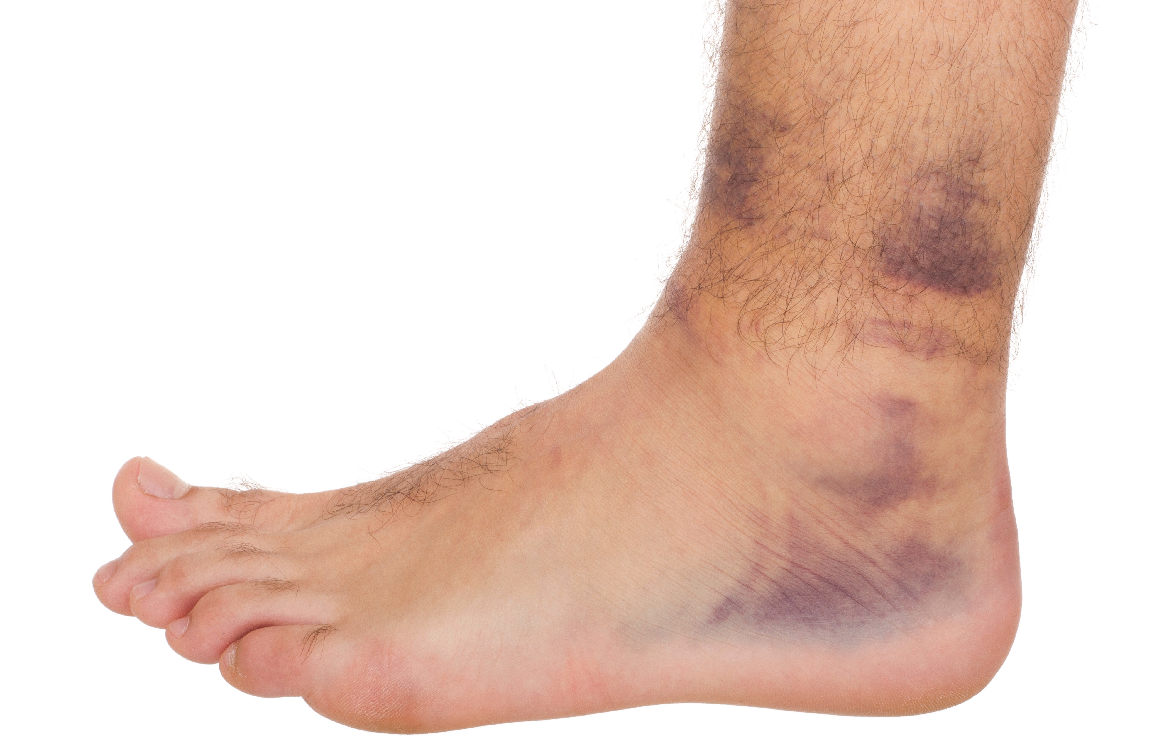 How a Diabetic Should Treat a Sprained Ankle
