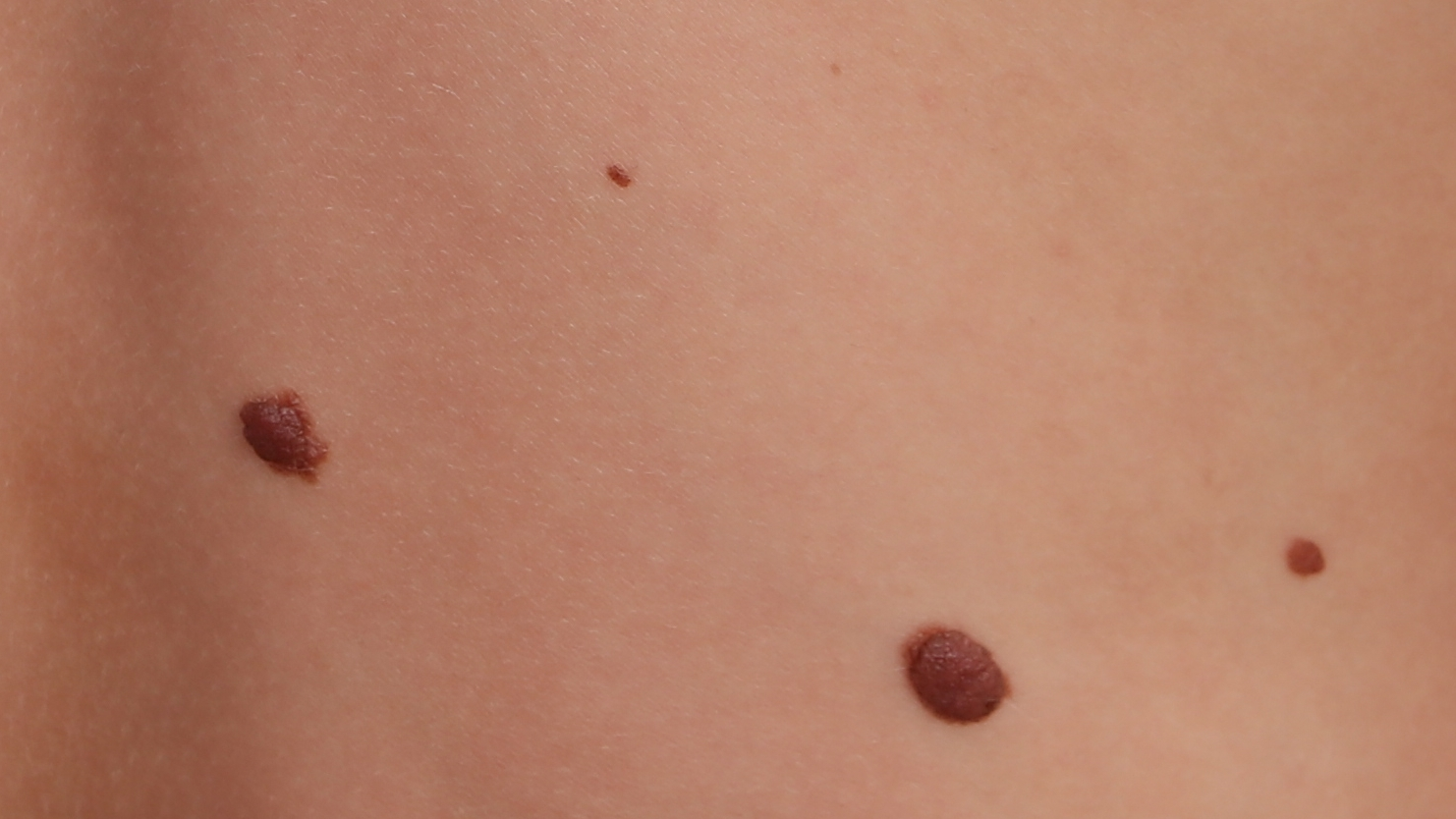 Why Not Prophylactic Removal of New Moles in Older People?