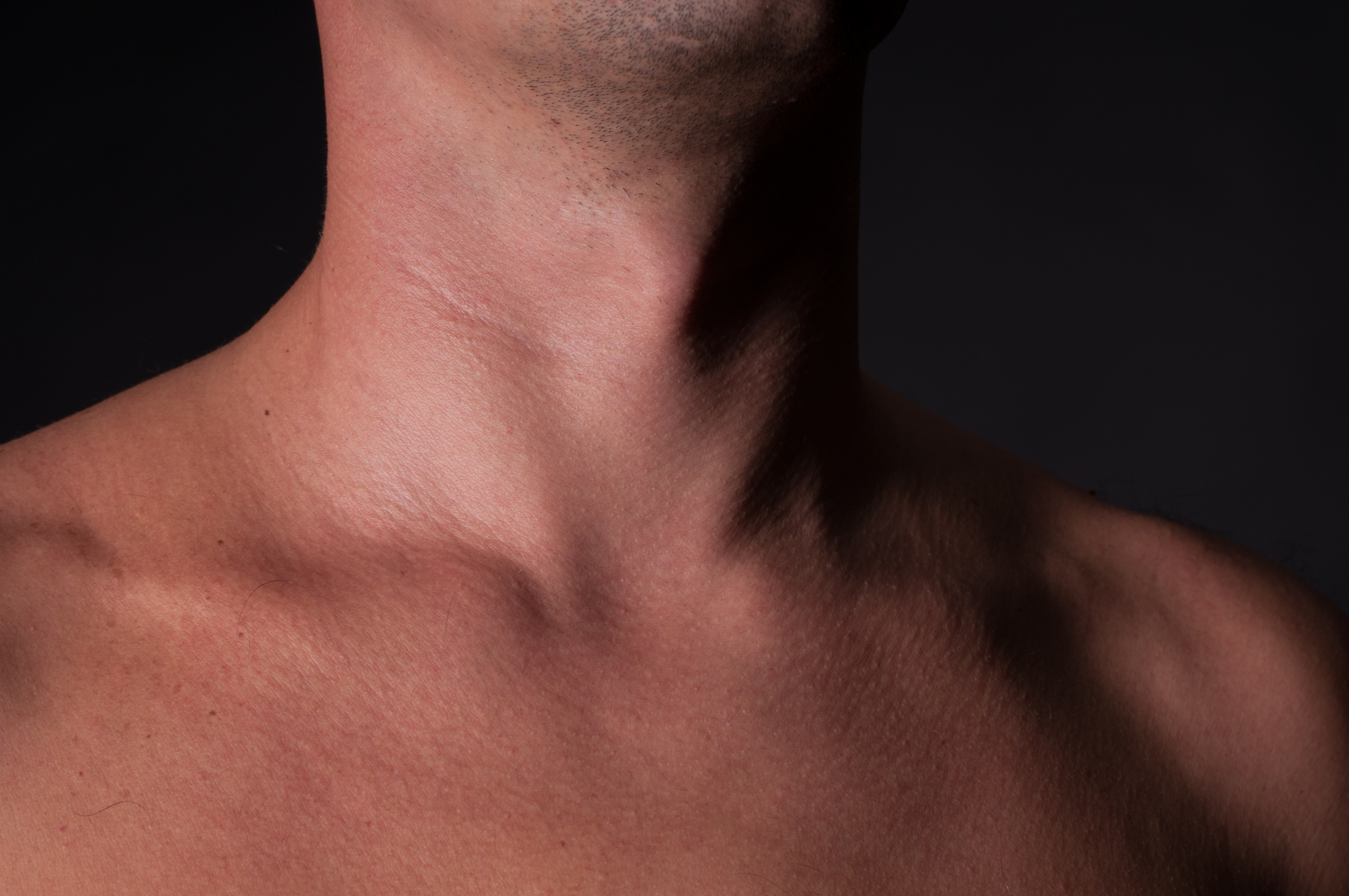 Can Cancer Cause Asymmetrical or Uneven Adam's Apple?