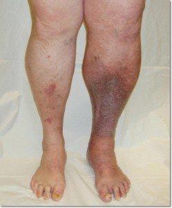 aspirin for blood clot in leg