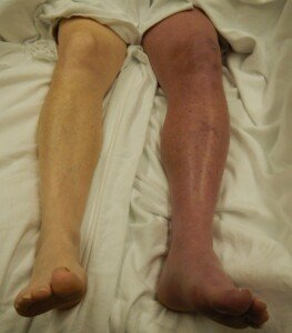 How Do Stockings Prevent Blood Clots after Surgery?