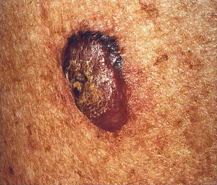 Should You Check for Melanoma if You Have Only a Few Moles ?