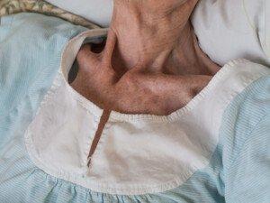 Why Are Many Elderly Women So Alarmingly Thin?