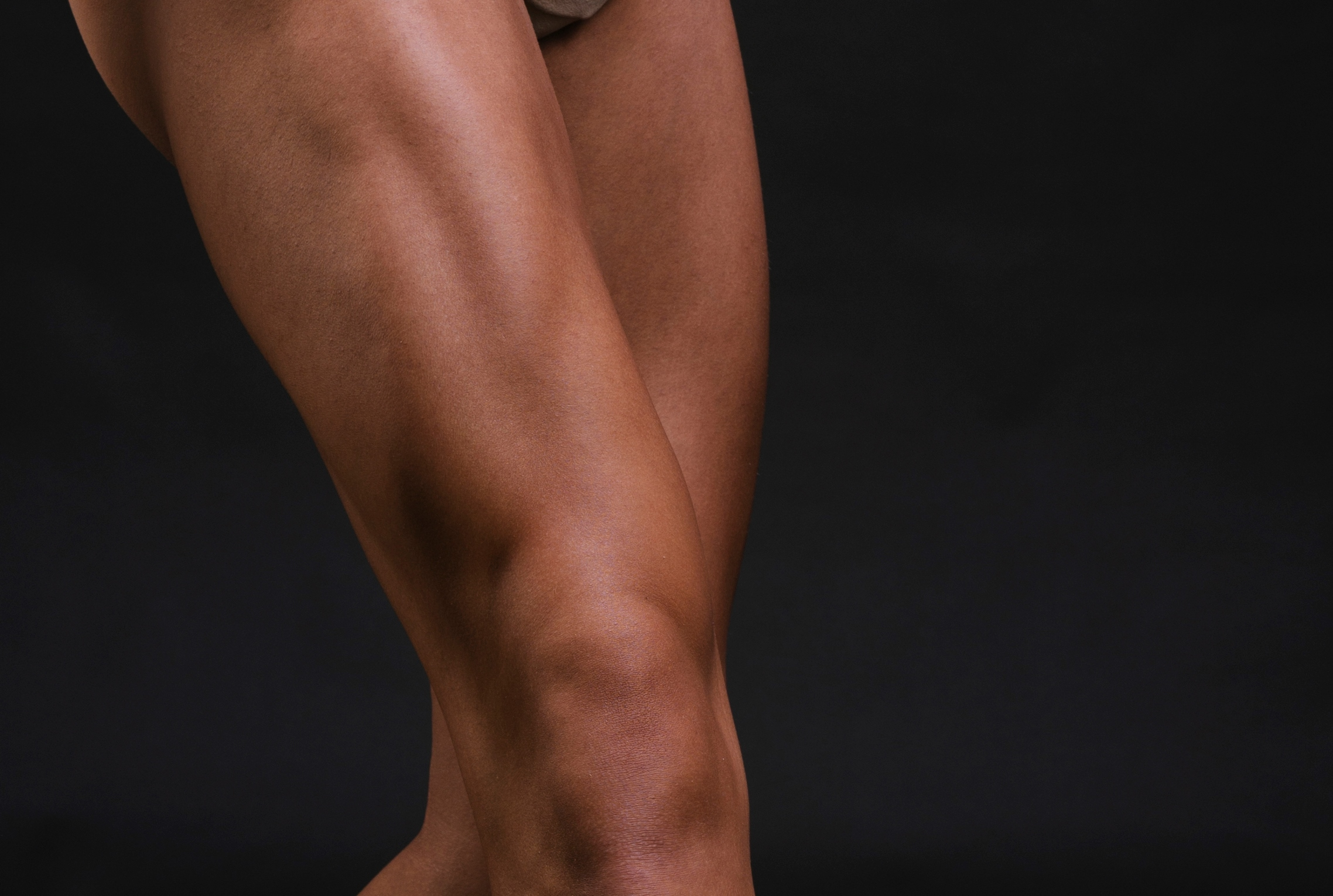 Can a Groove in the Thigh Muscle Ever Be an ALS Symptom ?
