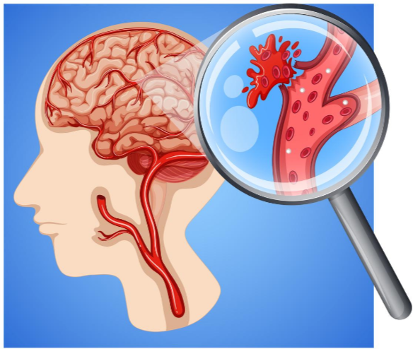 Exercise Guidelines after Brain Aneurysm Coiling or Clipping