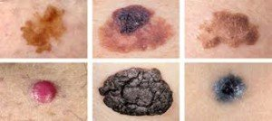 How to Detect Melanoma As Early As Possible