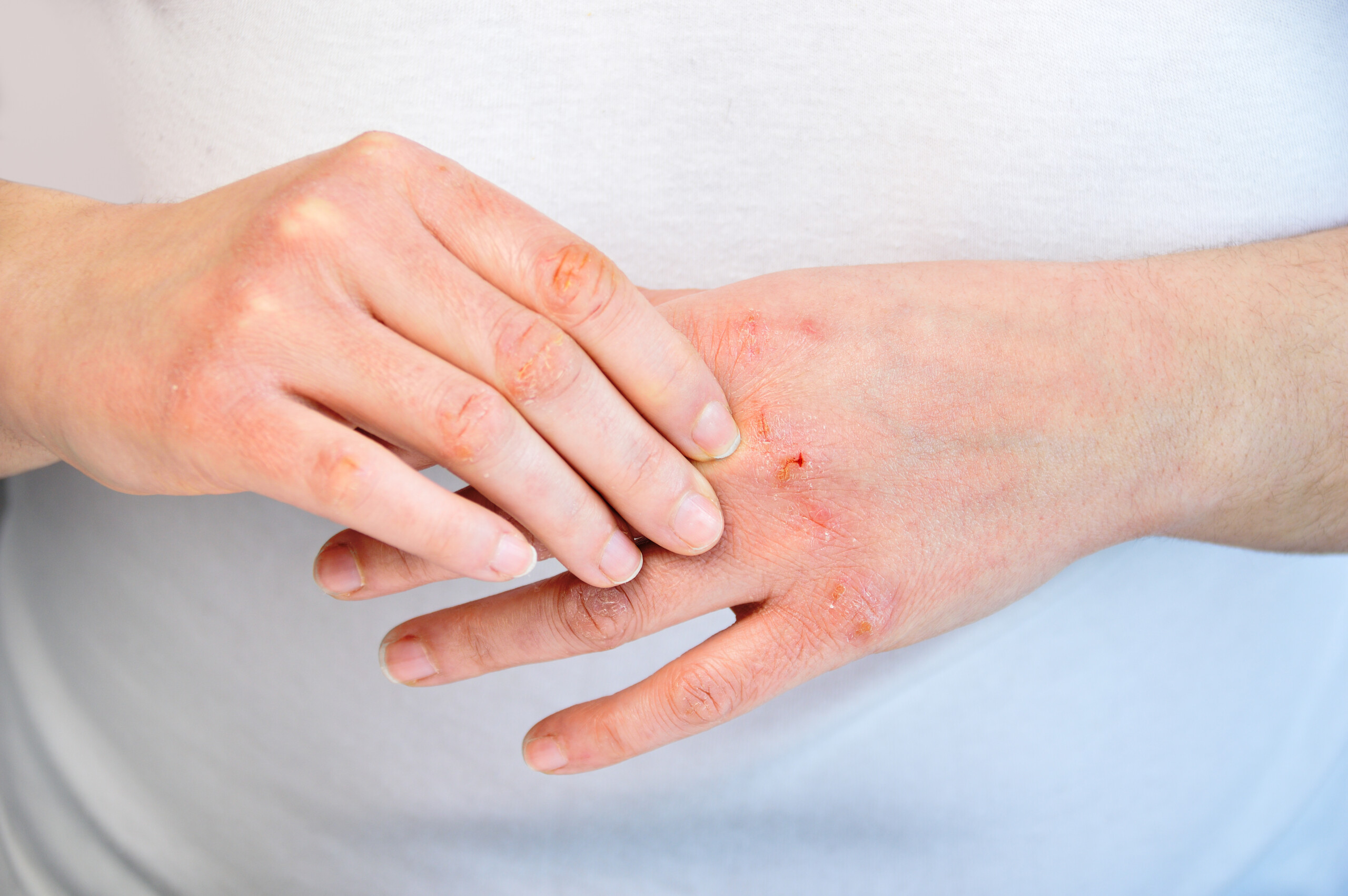 Can Skin Cancer Cause Skin to Peel?