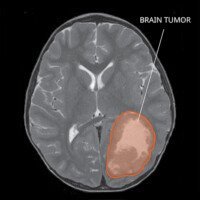 Do Brain Tumors Grow Back or Were They Never All Removed?