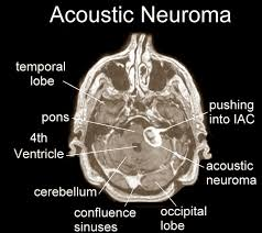 Best Procedure for Preserving Hearing in Acoustic Neuroma