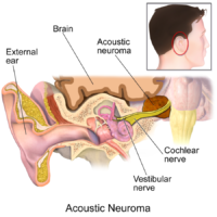 Is There a Drug that Can Stop Acoustic Neuroma Growth ?