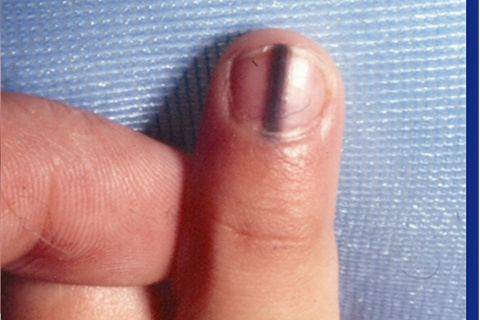 Brown Vertical Stripe in Child's Fingernail plus Cuticle