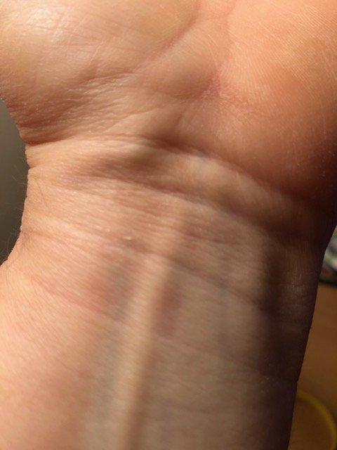 Does Watchband Indentation in Skin Mean a Medical Problem ?