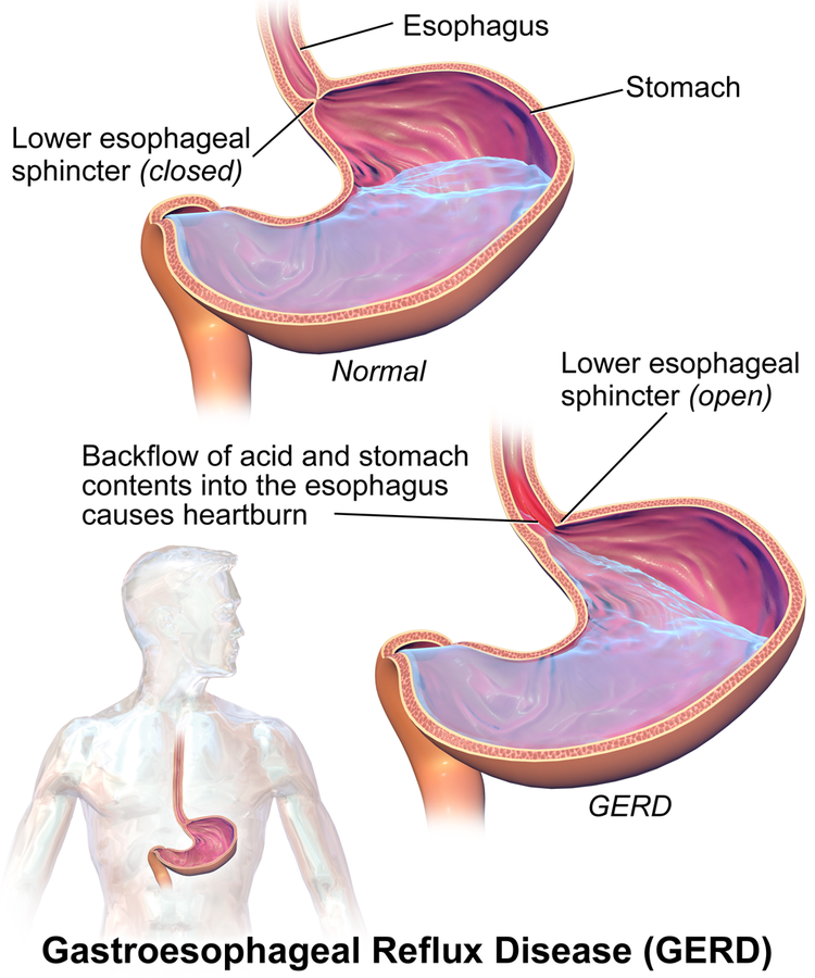 Acid Reflux - Increases Cancer Risk, Can Affect Throat