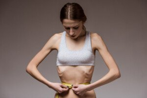 If Anorexia Nervosa Is a Mental Illness, Is Obesity Too?