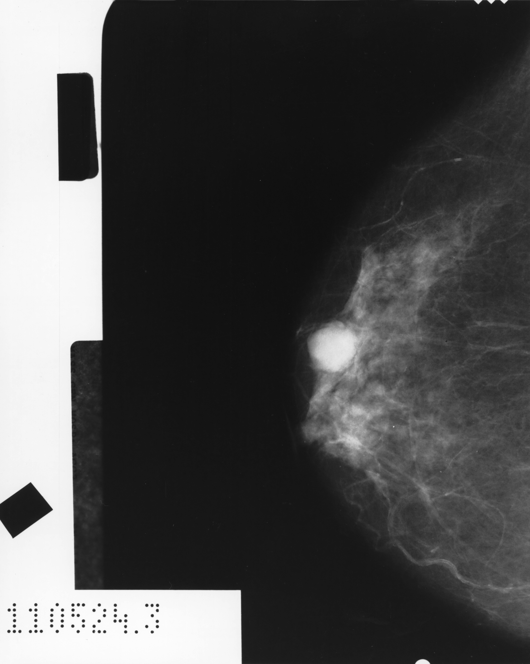 What to Look For During Self-Breast Exam Besides Feeling Lumps