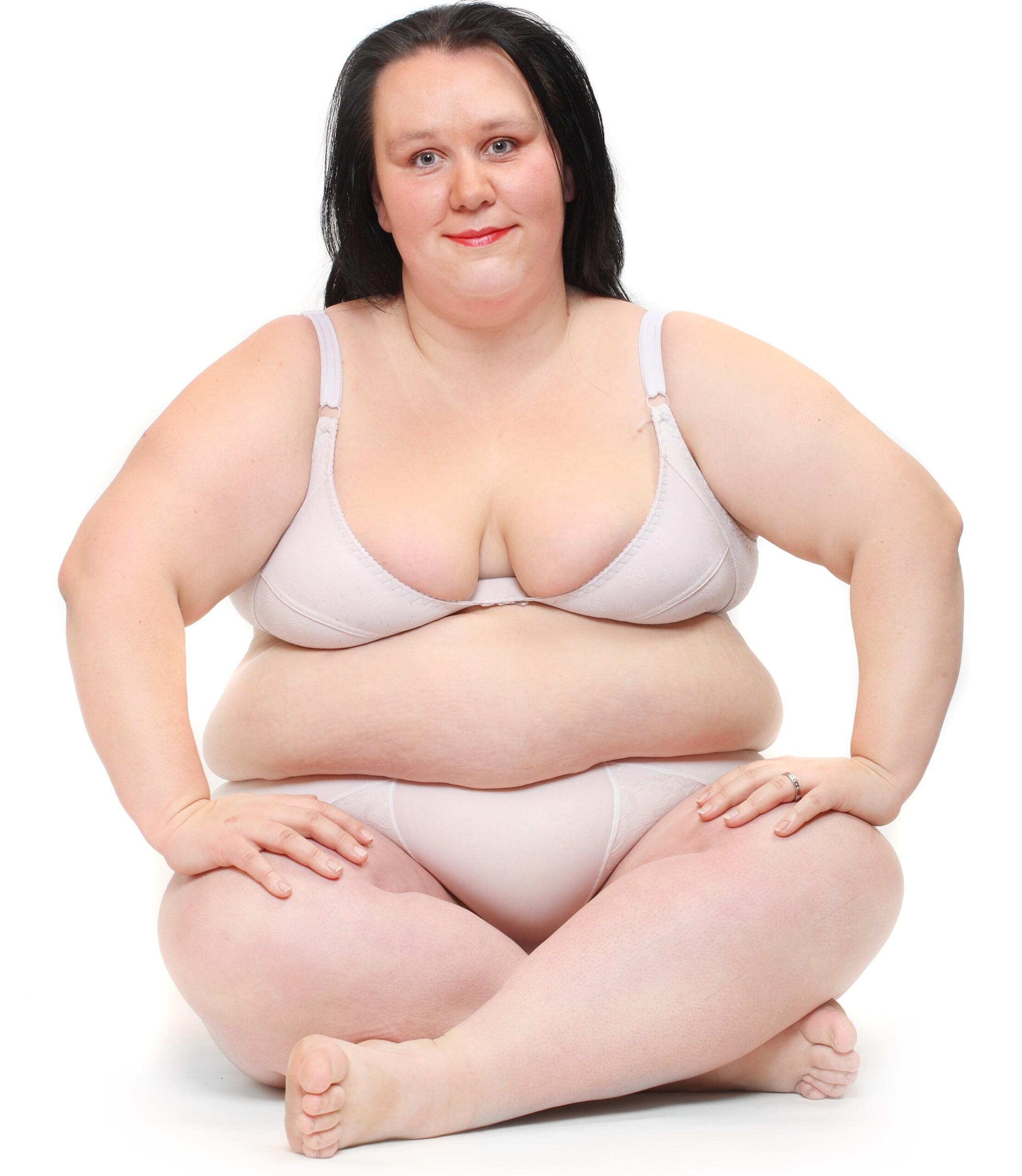 Morbidly Obese COVID Survivor Feels Fat Shamed by HospitalStaff