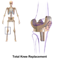 General Anesthesia vs. Regional for Knee Replacement Surgery